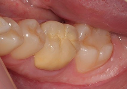 зъбна металокерамика варна