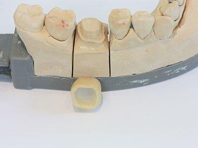 корона циментиране  зъболекар