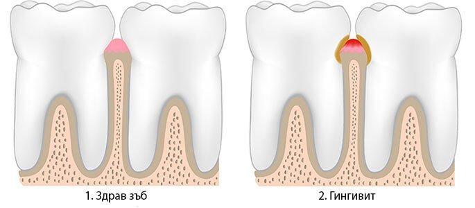 гингивит зъболекар