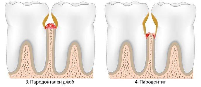 парадонтит зъболекар