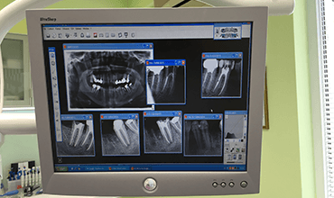 дигитален рентген зъболекар варна