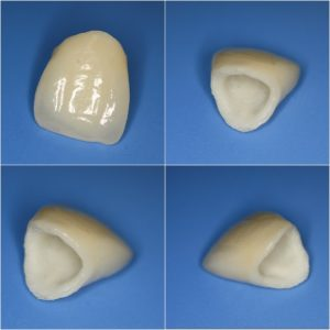 зъболекар приложение цирконий